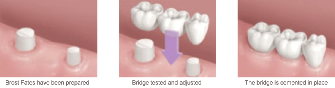 Bridges & Prosthetics Bridges & Prosthetics image16 eng