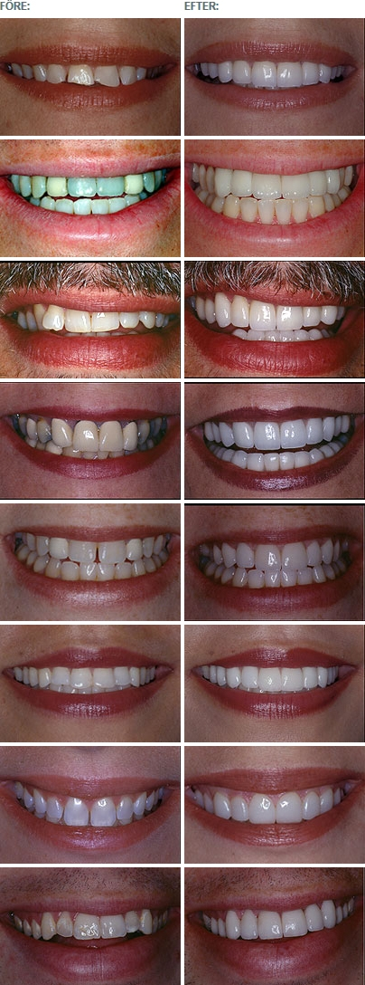 Cosmetic Dentistry / Astondental Stockholm aesthetic dentistry Aesthetic dentistry image10